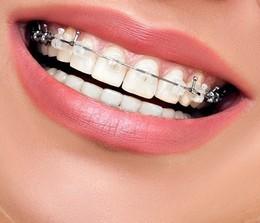 Скидки на ортодонтическое лечение от 15 - 30%!