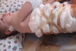 «Теперь даже мух боится»: мама малыша, на которого на Уралмаше напала собака, — о его состоянии